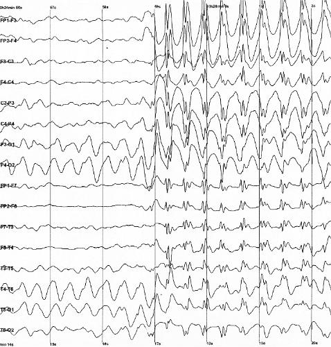 Epilepsia 1