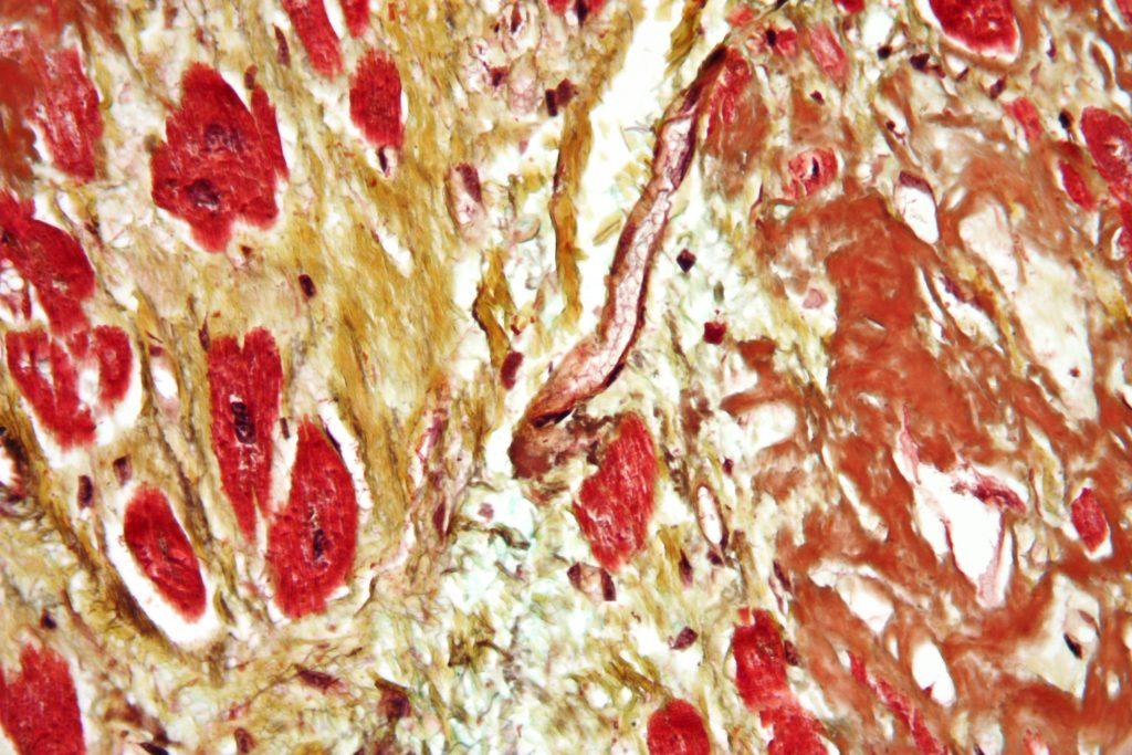 Cardiopatia 1